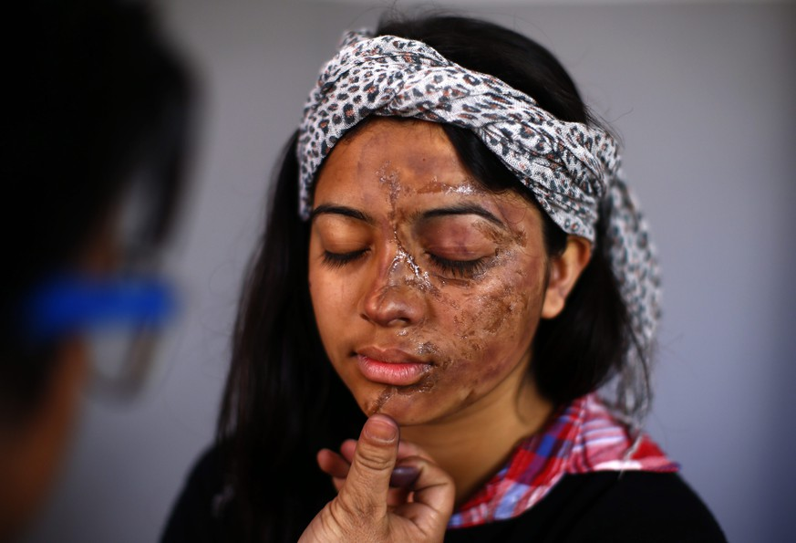 epa04645559 An artist make up a symbolic damage face by acid attack to student of Nepal Law campus, Kusum Adhikari, before a protest rally against acid attacks in Kathmandu, Nepal, 03 March 2015. Hundreds of college students stage a demonstration against recent acid attack on two school girls Seema Magar and Sangeeta Basnet by two unidentified young men while they attended coaching class on 22 February 2015. Nepalese Police still hunt for acid attackers.  EPA/NARENDRA SHRESTHA