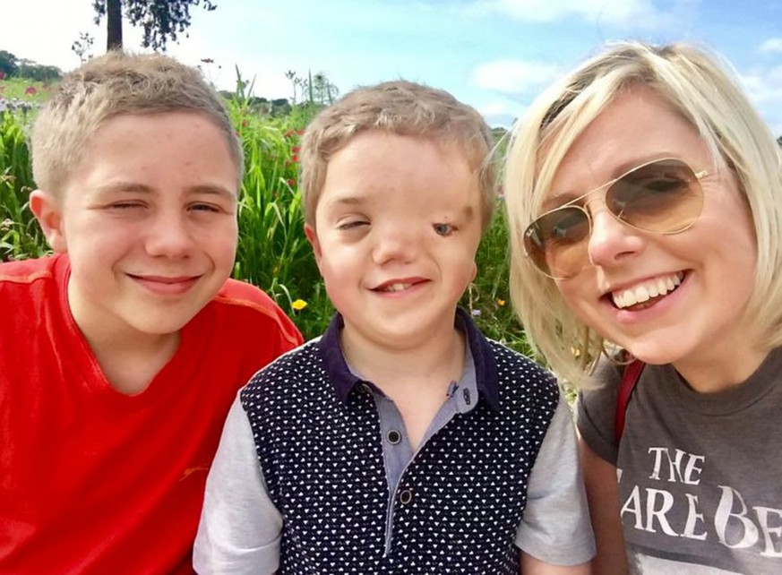 Mum Charlie Beswick, 38, with twins Harry Beswick (who has Goldenhar syndrome) and Oliver Beswick, 12.  A mum has been left outraged after Instagram took down a photo of her son who has a facial deformity - after another user reported it to their content moderation team.  See NTI story NTIFACE.  Harry Beswick, 12, was born with Goldenhar syndrome, which means he has no left eye, eye socket, nostril or left ear.  Mum-of-two Charlie Beswick, 38, posts pictures of Harry and his twin Oliver to 12,000 followers on her Instagram account called Our Altered Life.  Harry has a prosthetic eye, but when Charlie, from Stoke-on-Trent, posted a picture of him without his eye in on Sunday (10/9), the picture was taken down two days later.  Charlie complained about the decision on her Twitter account, which has been re-tweeted more than 46,000 times.  After many people contacted Instagram to express outrage, the photo was restored at around 7pm on Tuesday (12/9).