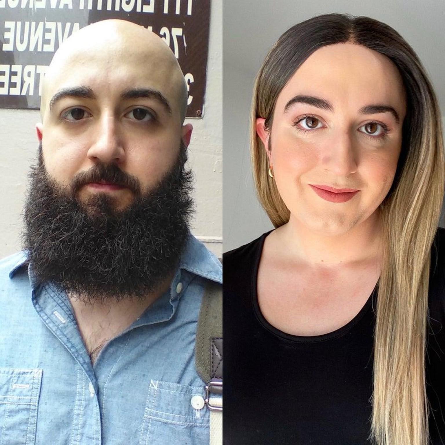 Nachher frau vorher mann zu Geschlechtsumwandlung frau