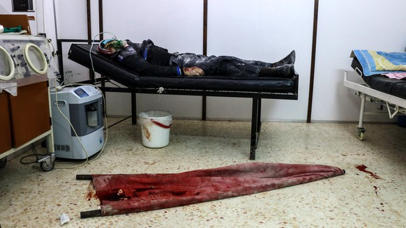 epa05802174 An injured man by an alleged sniper shots receives medical attention, in a field hospital at Rebel-held Barzeh, Syria, 18 February 2017. According to activists 12 people were killed and 33 injured after six surface-to-surface missiles and sniper shots at Barzeh and al-Qabun. The two towns are held by forces of the opposition and are under a ceasefire agreement with the Syrian regime.  EPA/STR