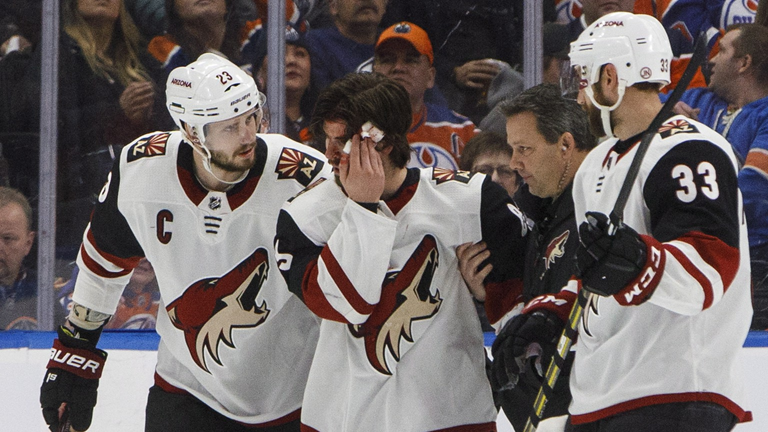 Arizona Coyotes' Conor Garland (83) is helped off the ice after taking a puck to the head during the second period of an NHL hockey game against the Edmonton Oilers on Saturday, Jan. 12, 2019, in Edmonton Alberta. (Jason Franson/The Canadian Press via AP)