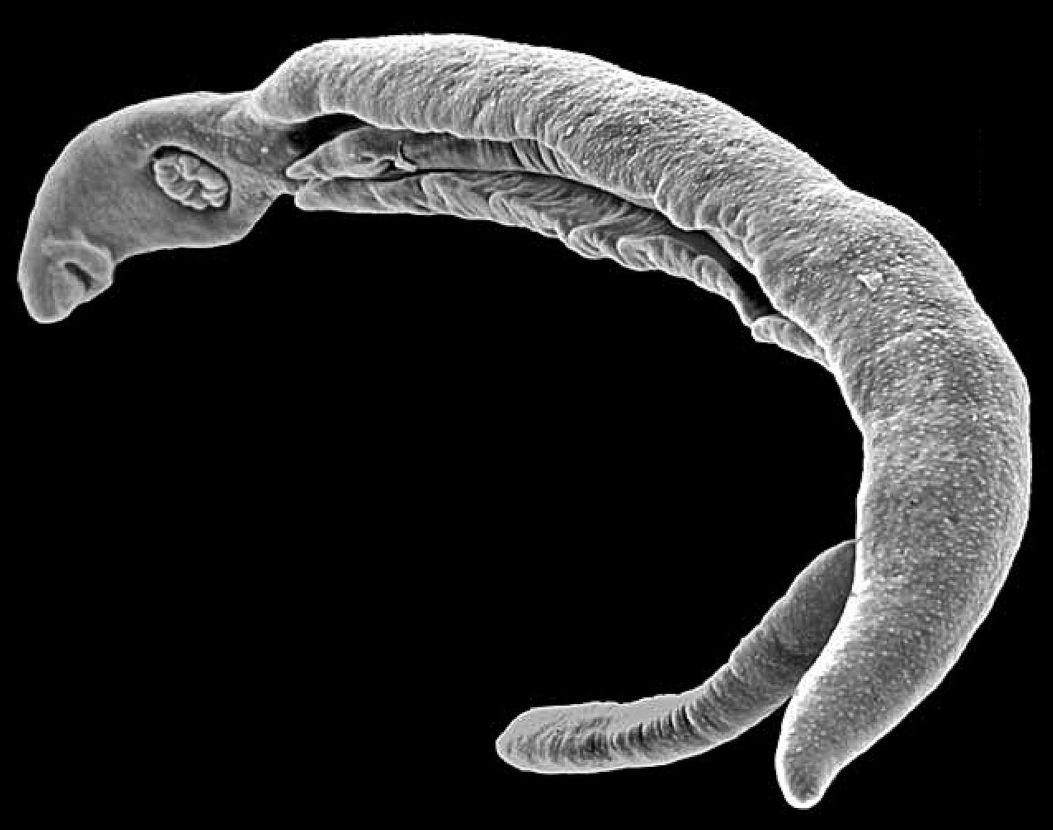 Die Analyse des Blutes auf der Würmer jekaterinburg