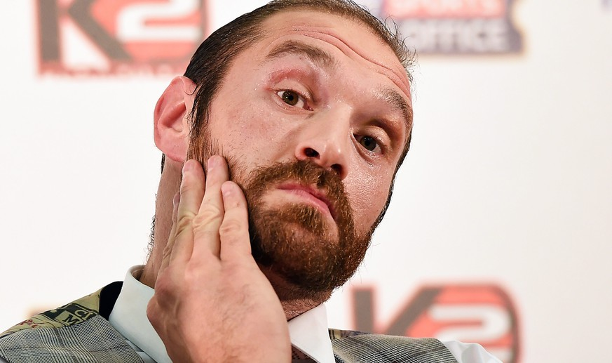 epa05568180 (FILE) A file photograph showing British heavyweight boxer Tyson Fury reacts during a press conference in London, Britain, 23 September 2015. Media reports on 03 October 2016 state that World heavyweight champion Tyson Fury says he has retired from boxing in a message on Twitter.  EPA/ANDY RAIN *** Local Caption *** 52240346