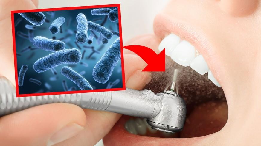Alarmierende Anzahl an unhygienischem Spülwasser bei Zahnärzten