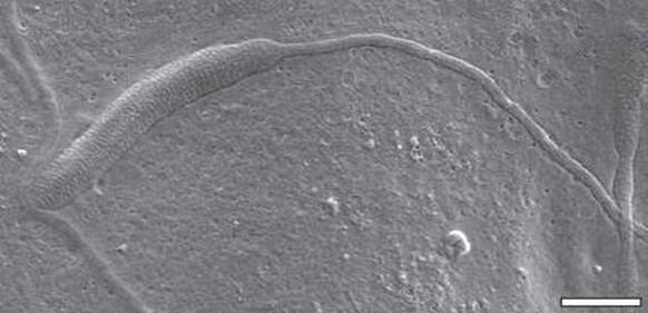 Wie den Würmern des Gehirns zu entgehen