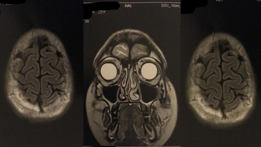 Diagnose Gehirntumor – so fühlt es sich an, am offenen Gehirn operiert zu werden