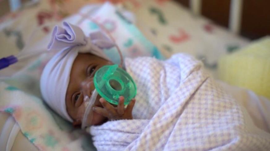 Kleinstes Baby Der Welt