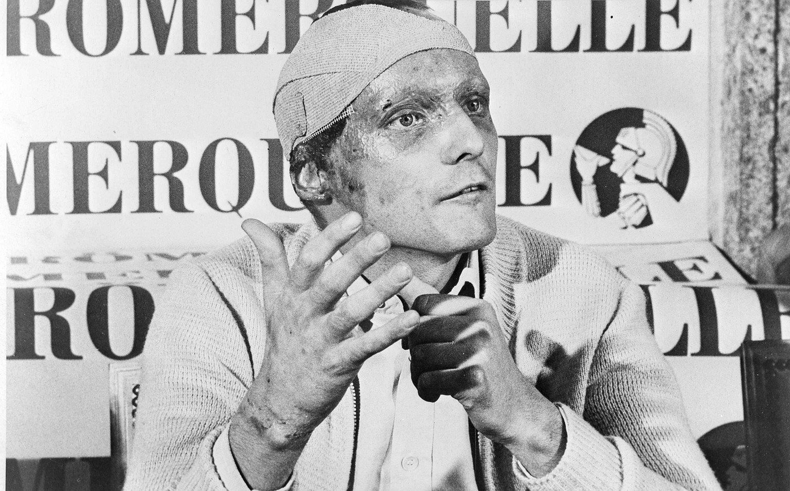 Austrian auto racer Niki Lauda, following his near fatal crash at the West German Grand Prix six weeks ago, announced he would start at the Italian Grand Prix at Monza, Sept. 12. (AP Photo) (KEYSTONE/AP/)