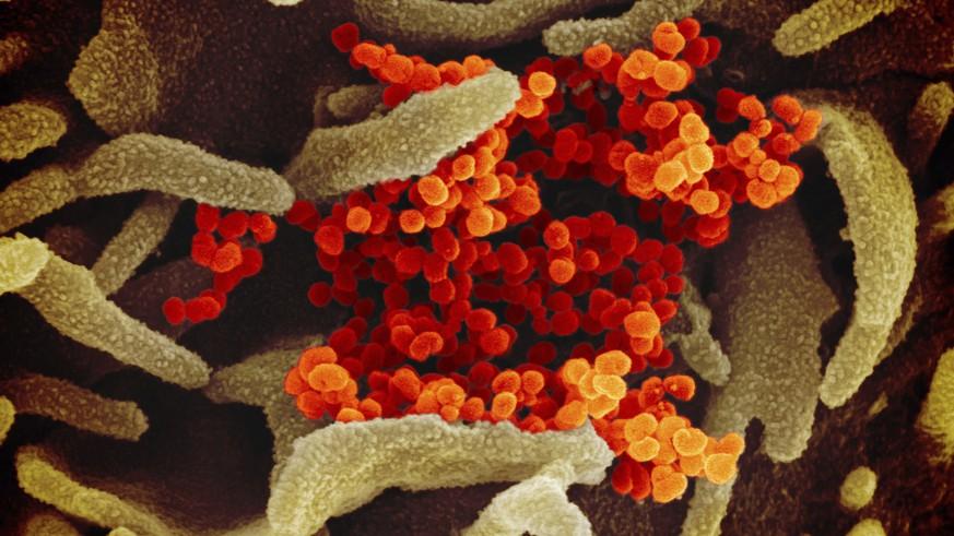 So schützt du dich vor dem Coronavirus – die wichtigsten 6 Punkte
